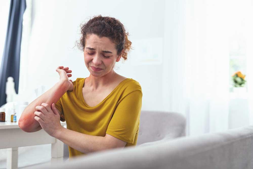 Frau mit Neurodermitis, die an der Haut kratzt